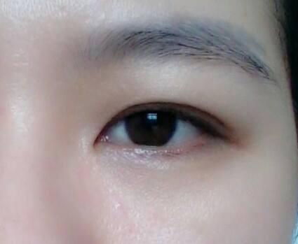 Mình muốn cắt bỏ mỡ thừa ở mắt, ai có kinh nghiệm chỉ cho mình nhé #sụpmí #pttm #mắt ?