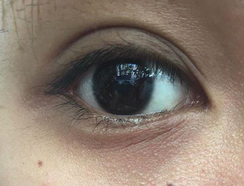 Xin tư vấn loại kem mắt trị thâm quầng và nếp nhăn nào hiệu quả k?