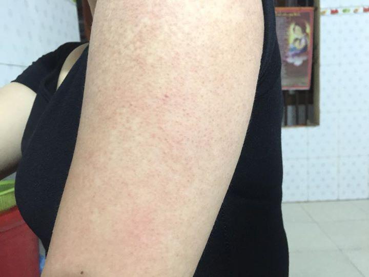 Có ai bị viêm lỗ chân lông nặng như tnay mà chữa đc chưa giúp em với ạ ?