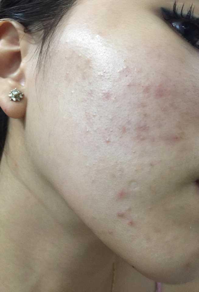 Da mặt em bị mụn thì có nên đi đến spa nặn mụn không vì em nghe nói càng nặn càng nhiều mụn?