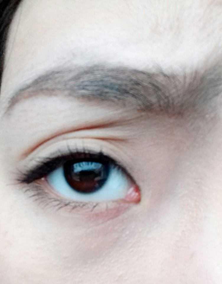 Hỏi cách khắc phục vùng da mắt bị nhăn cho người 25 tuổi?